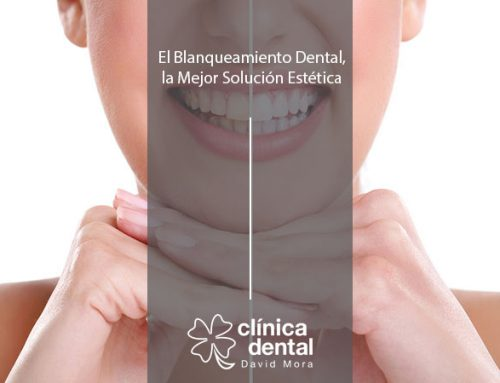 El Blanqueamiento Dental, la Mejor Solución Estética